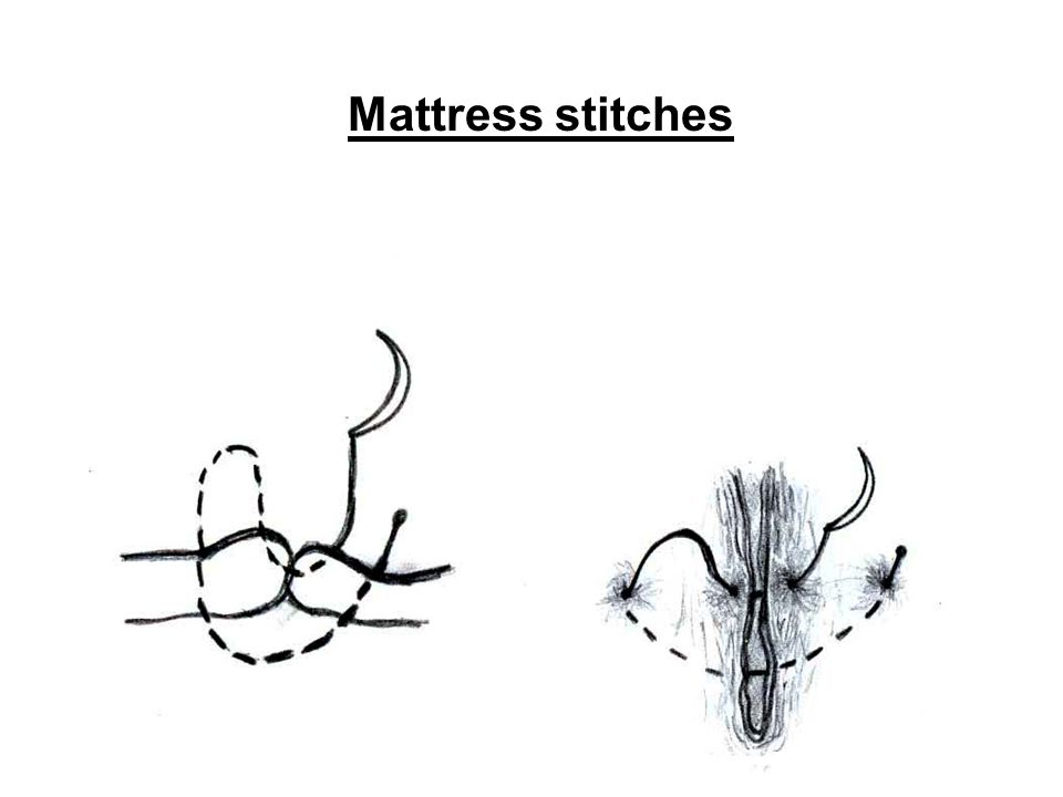 Mattress stitches