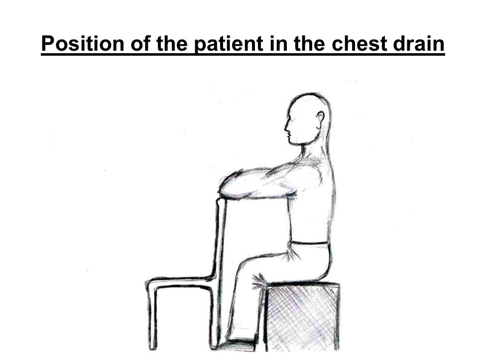 Position of the patient in the chest drain
