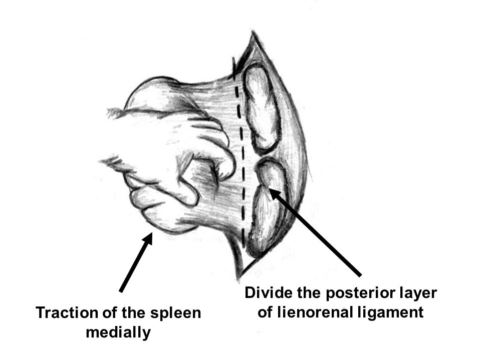 Divide the posterior layer of lienorenal ligament