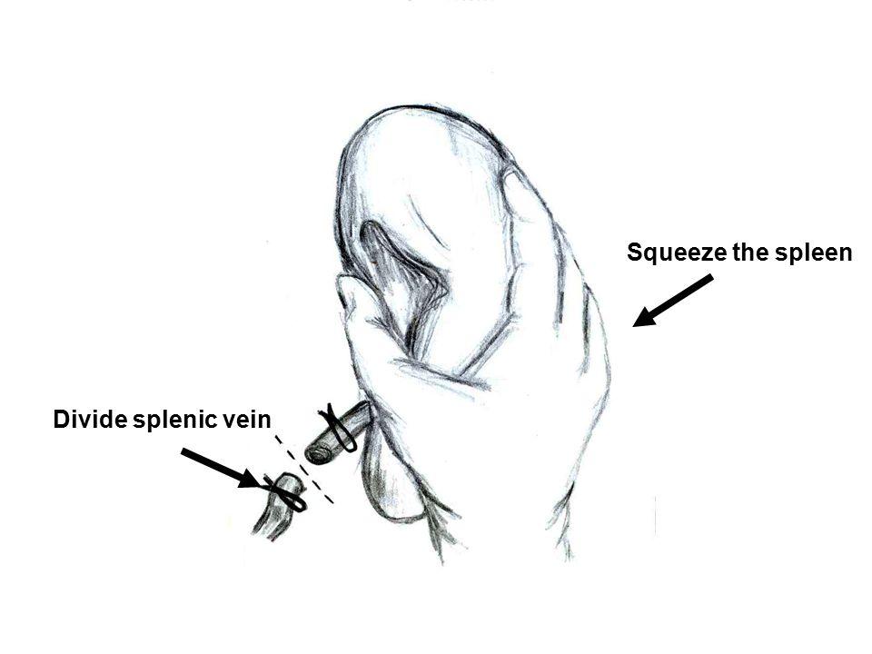 Squeeze the spleen Divide splenic vein