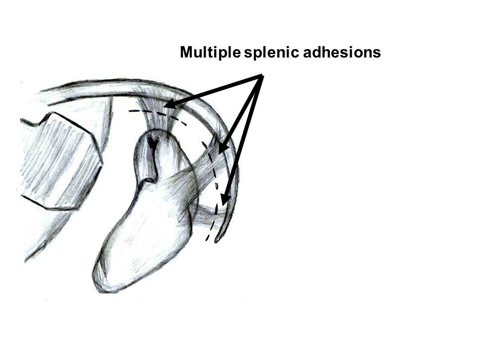 Multiple splenic adhesions