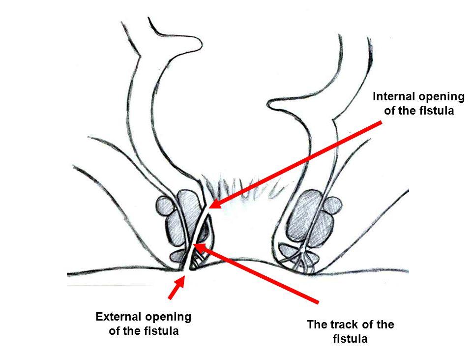 Internal opening of the fistula