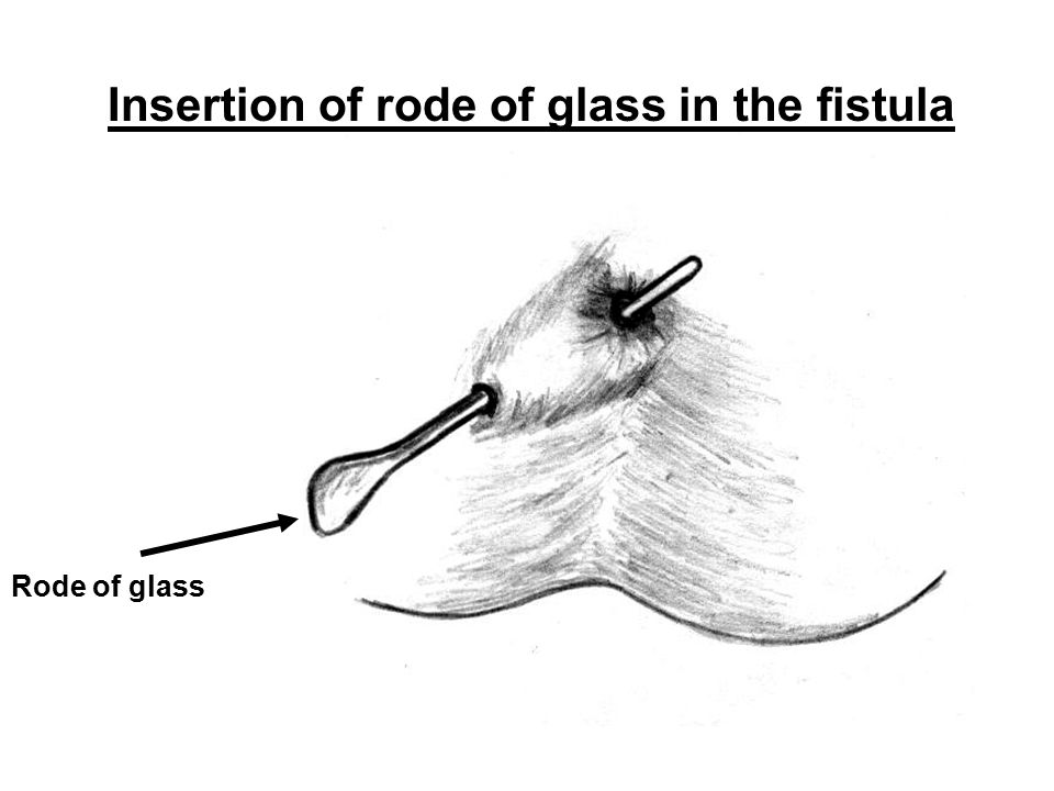 Insertion of rode of glass in the fistula