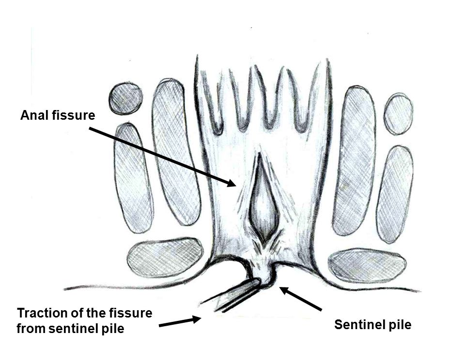 Anal fissure Traction of the fissure from sentinel pile Sentinel pile