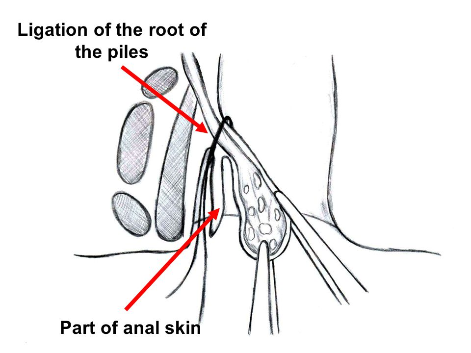 Ligation of the root of the piles