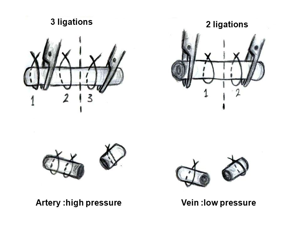 3 ligations 2 ligations Artery :high pressure Vein :low pressure