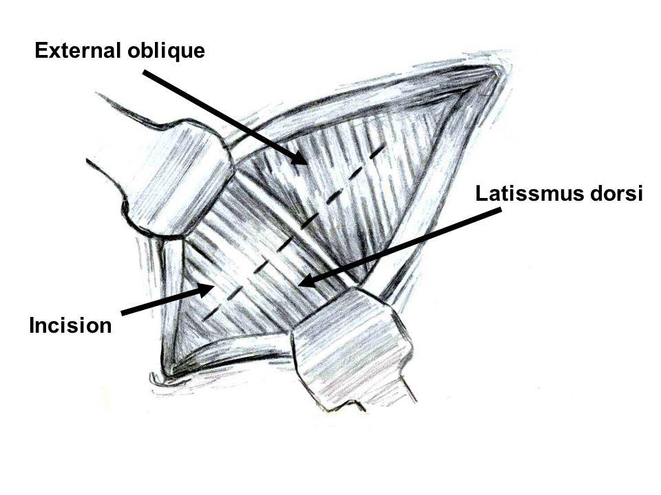 External oblique Latissmus dorsi Incision