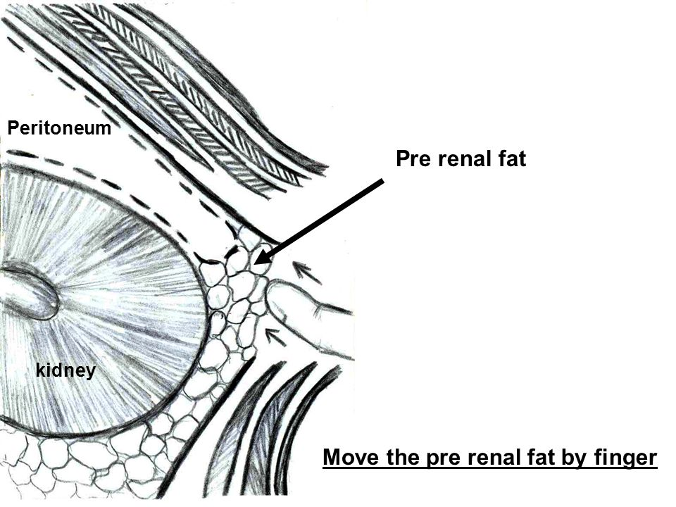 Move the pre renal fat by finger
