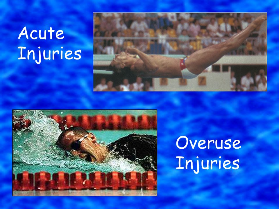 Acute Injuries Overuse Injuries