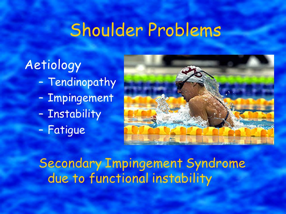 Shoulder Problems Aetiology
