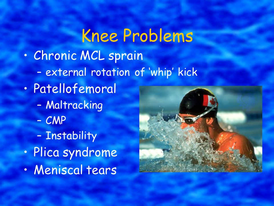 Knee Problems Chronic MCL sprain Patellofemoral Plica syndrome