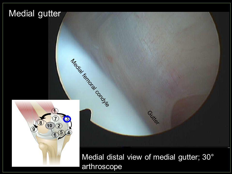 Medial gutter Medial distal view of medial gutter; 30° arthroscope