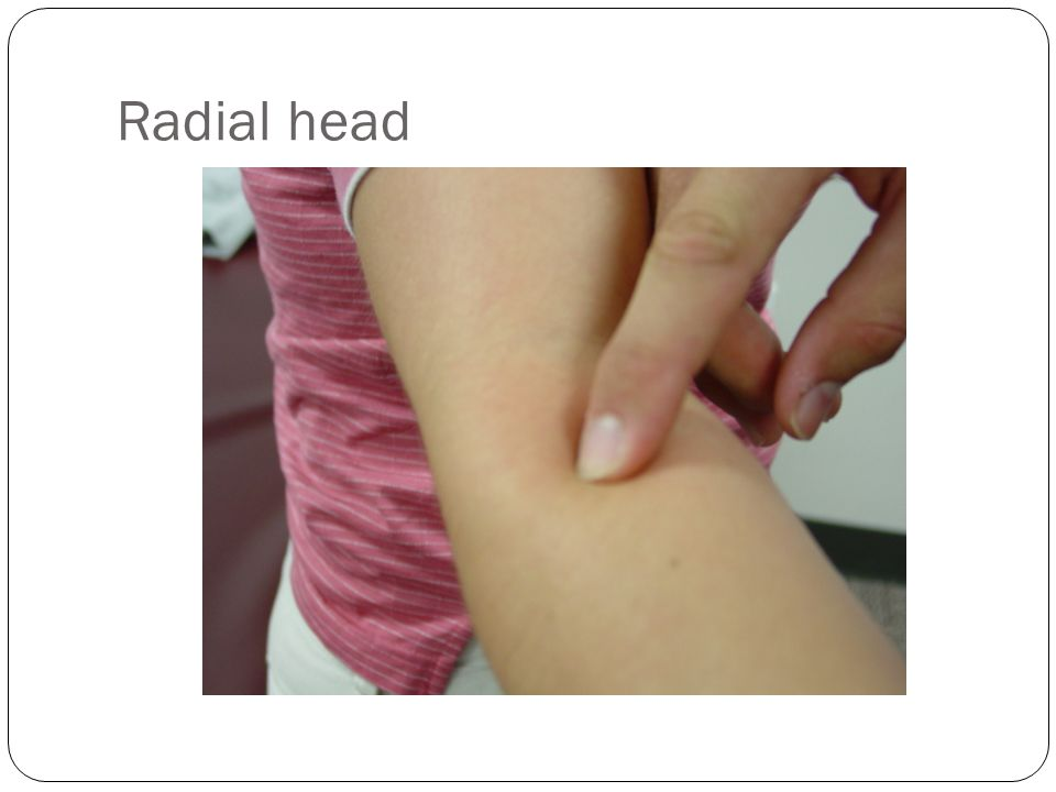 Radial head