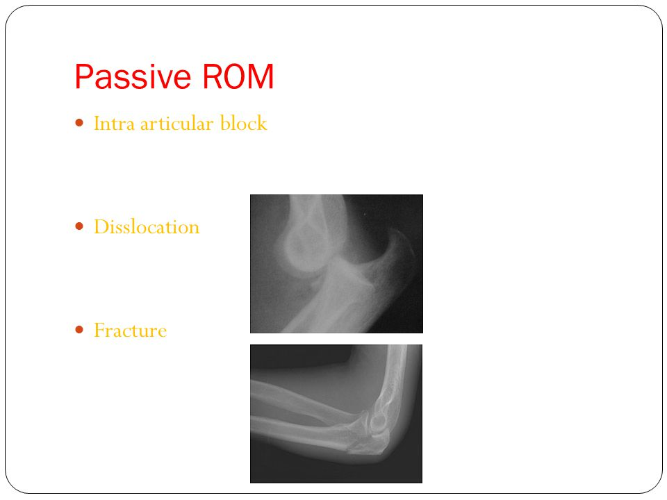 Passive ROM Intra articular block Disslocation Fracture