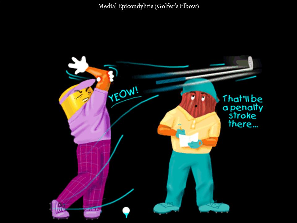 Medial Epicondylitis (Golfer's Elbow)