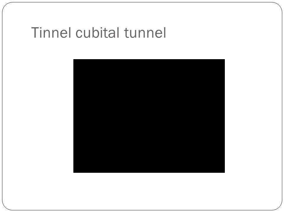 Tinnel cubital tunnel