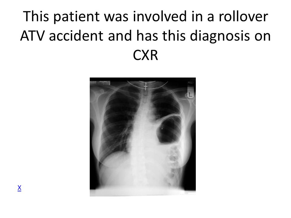 This patient was involved in a rollover ATV accident and has this diagnosis on CXR