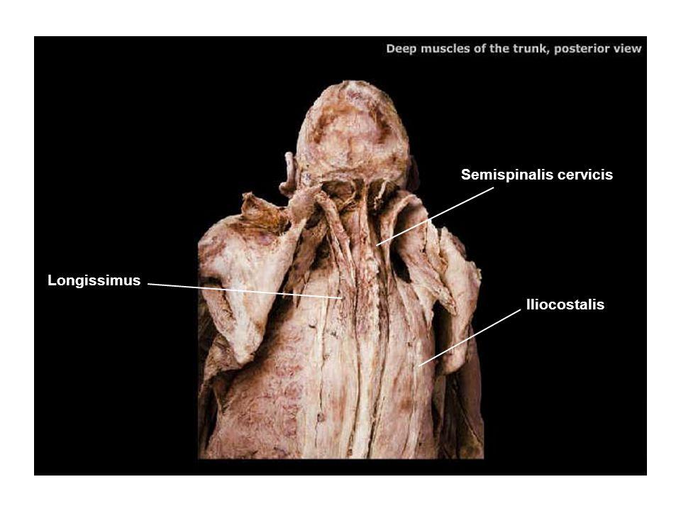 Semispinalis cervicis
