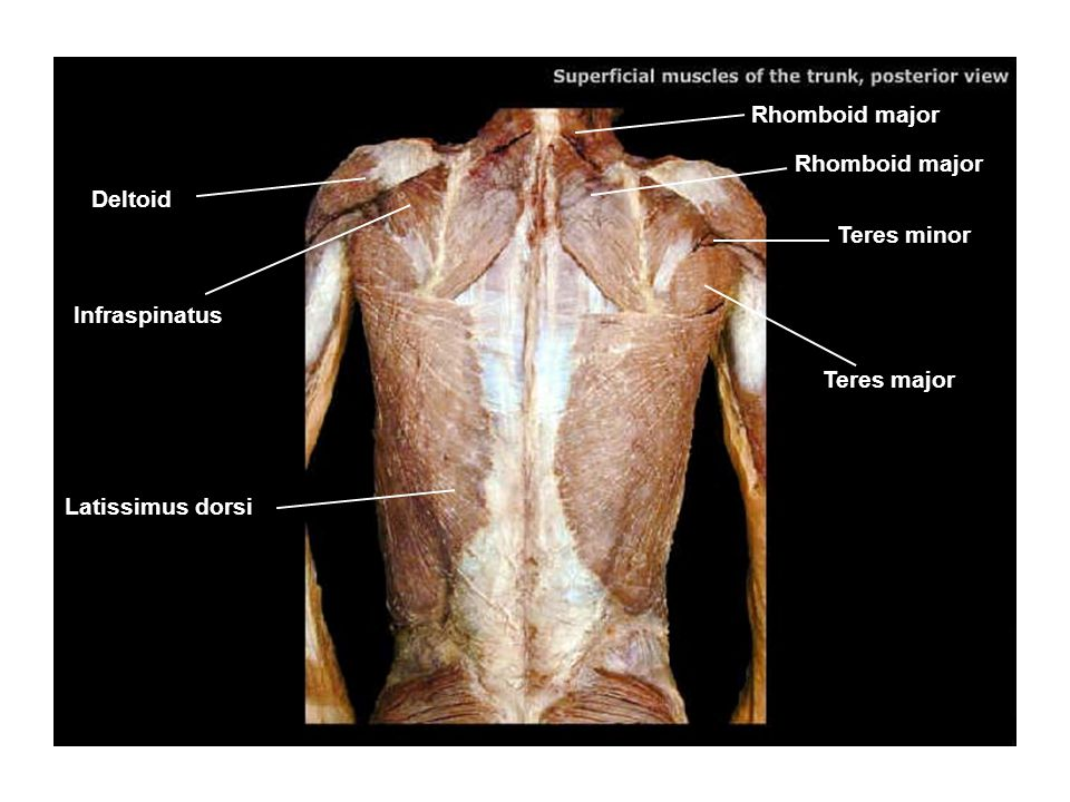 Rhomboid major Rhomboid major Deltoid Teres minor Infraspinatus Teres major Latissimus dorsi