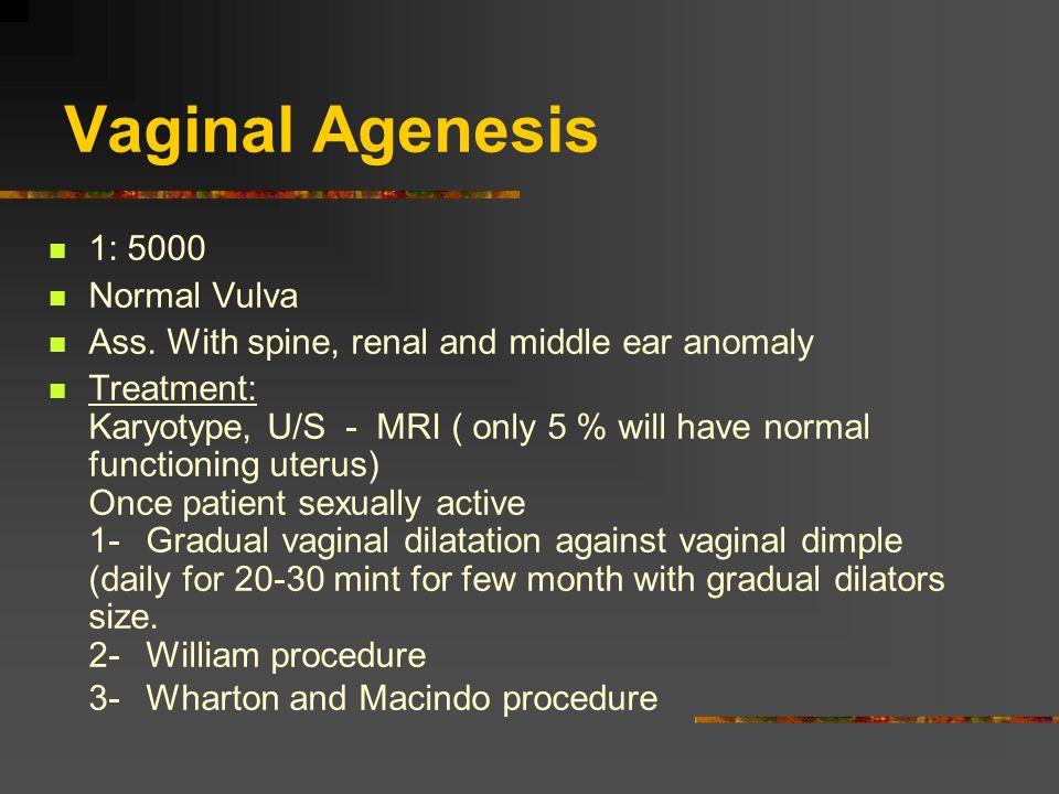 Vaginal Agenesis 1: 5000 Normal Vulva