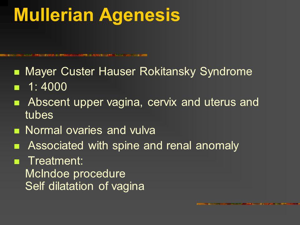 Mullerian Agenesis Mayer Custer Hauser Rokitansky Syndrome 1: 4000