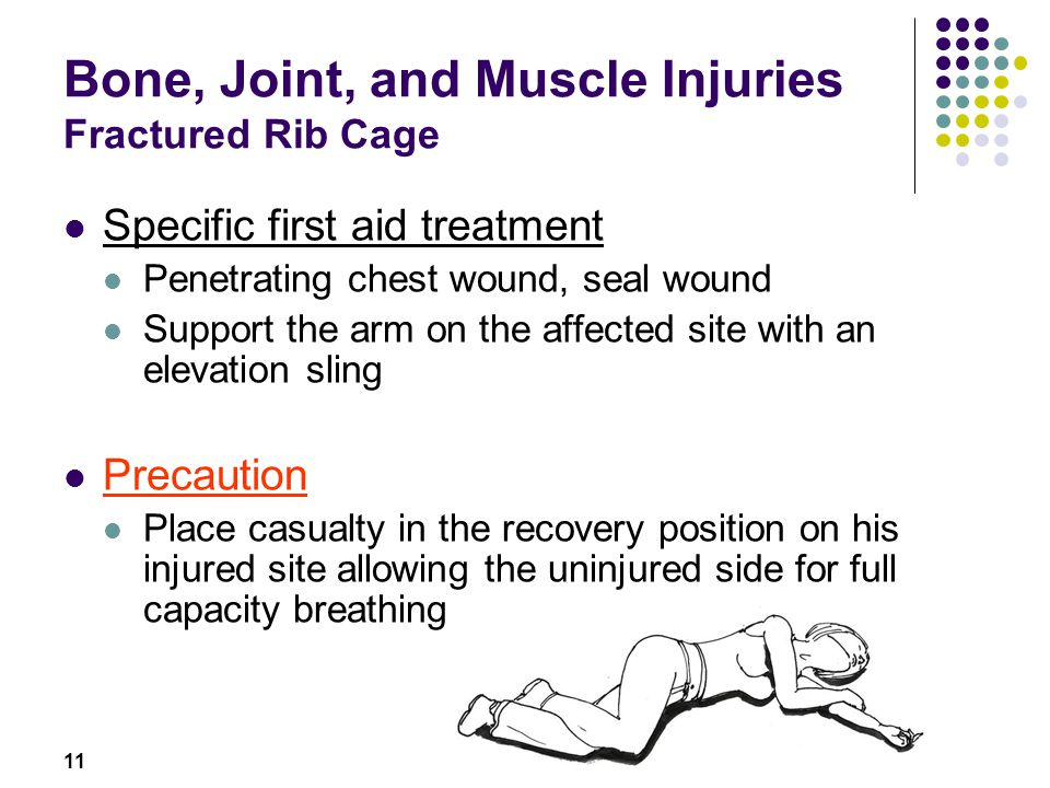 Bone, Joint, and Muscle Injuries Fractured Rib Cage