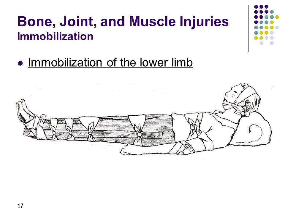 Bone, Joint, and Muscle Injuries Immobilization