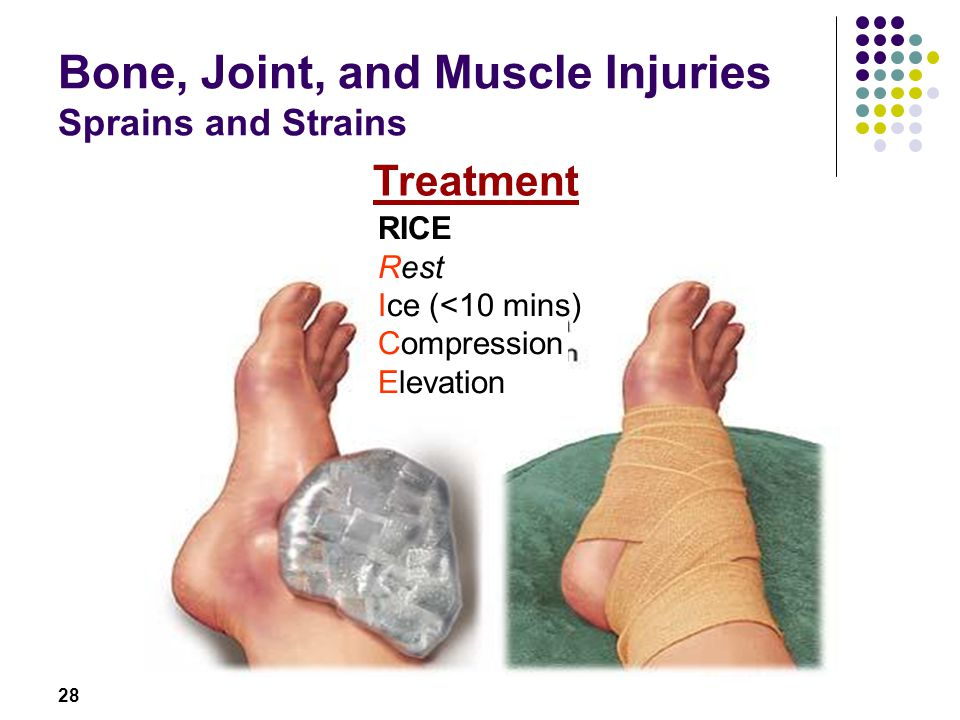 Bone, Joint, and Muscle Injuries Sprains and Strains