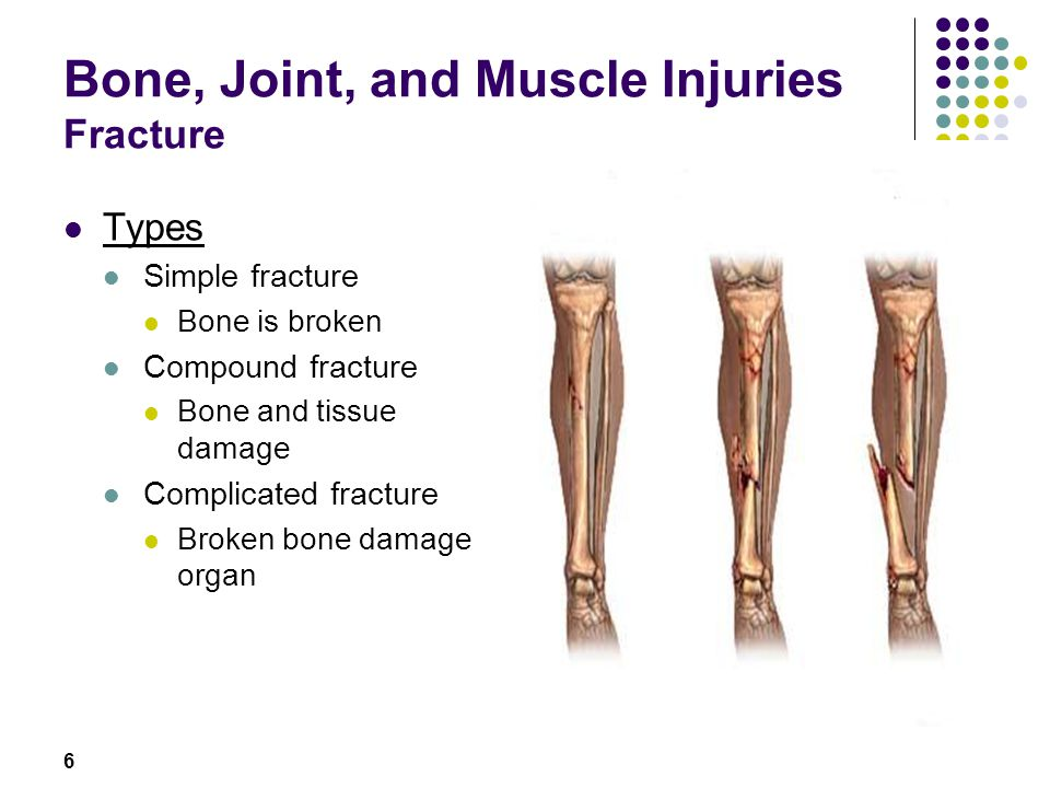 Bone, Joint, and Muscle Injuries Fracture