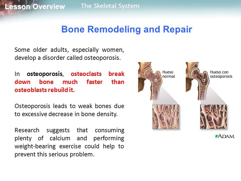 Bone Remodeling and Repair
