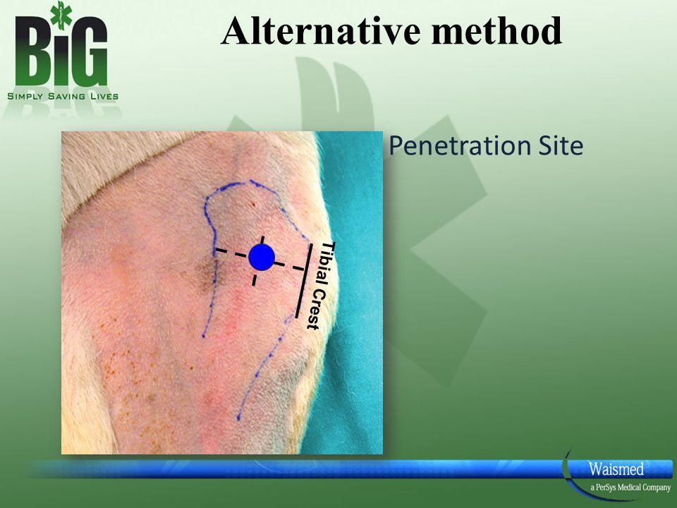 Alternative method Penetration Site Tibial Crest