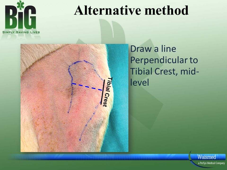 Alternative method Draw a line Perpendicular to Tibial Crest, mid-level Tibial Crest