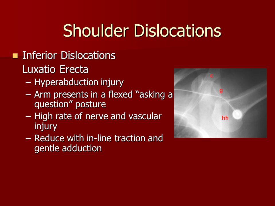 Shoulder Dislocations