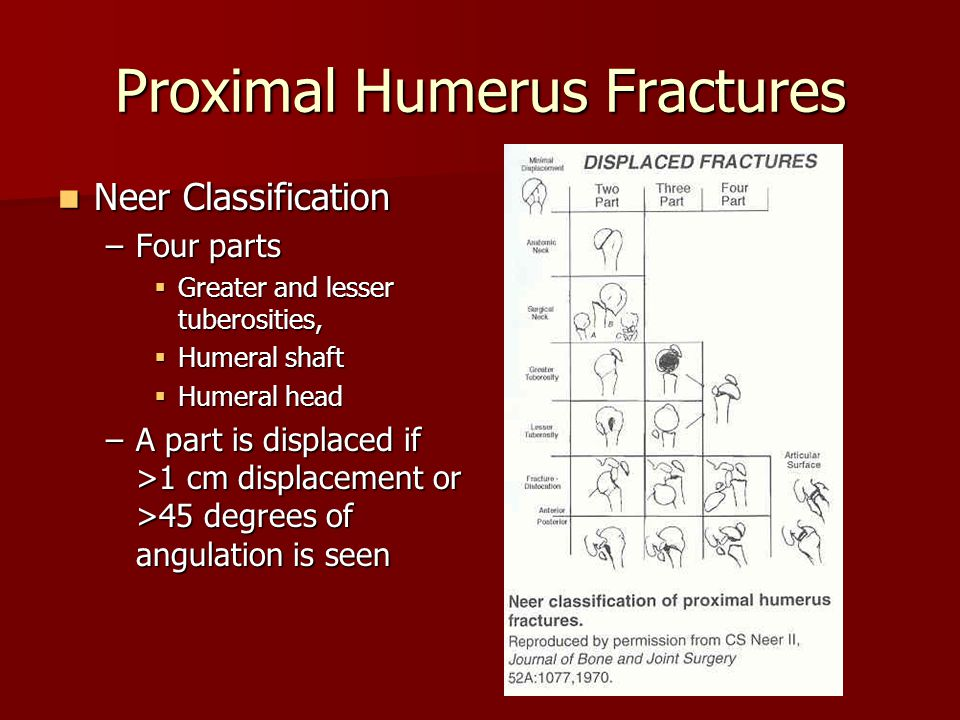 Proximal Humerus Fractures