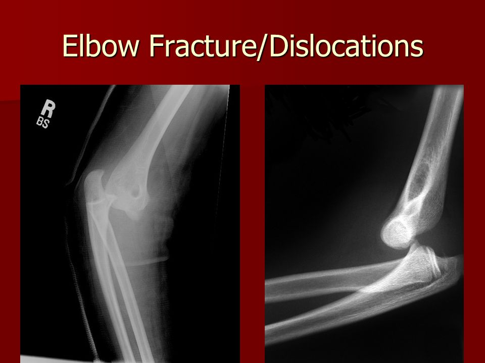Elbow Fracture/Dislocations