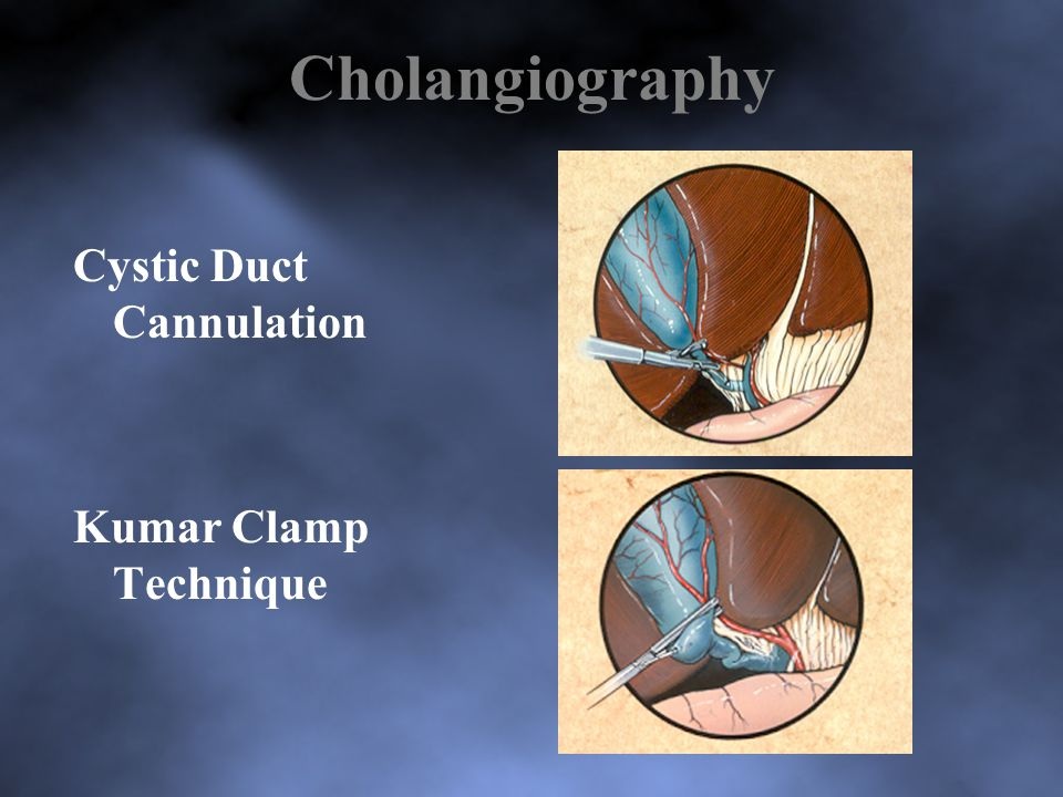 Cholangiography Cystic Duct Cannulation Kumar Clamp Technique