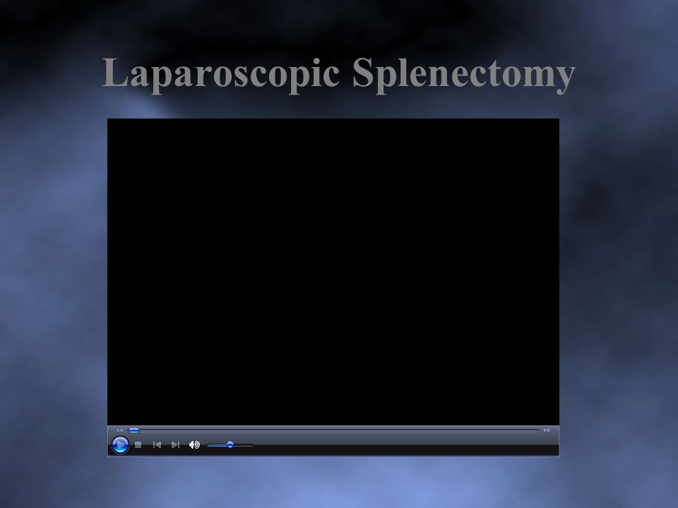 Laparoscopic Splenectomy