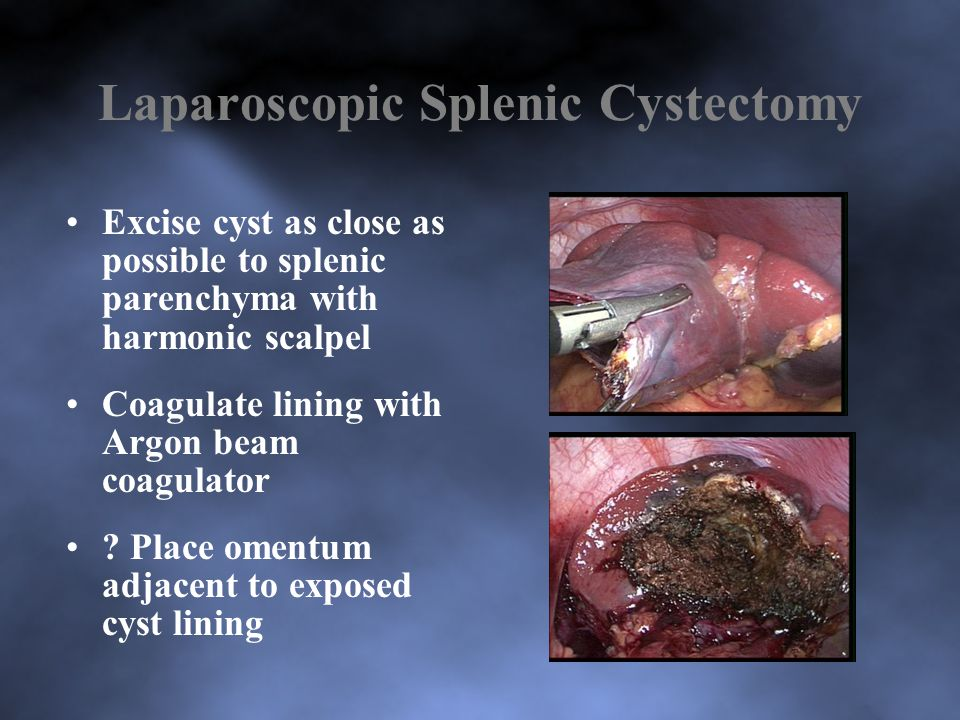 Laparoscopic Splenic Cystectomy