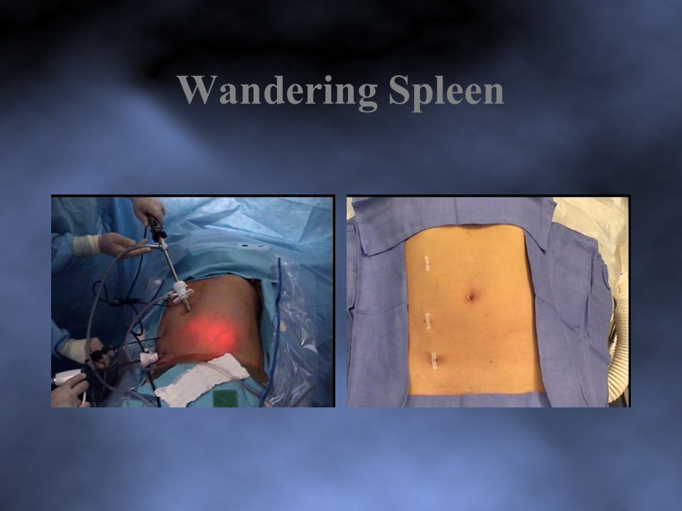 Wandering Spleen