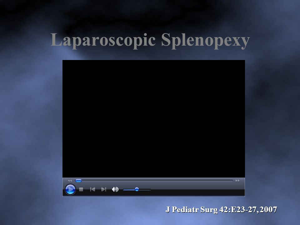 Laparoscopic Splenopexy