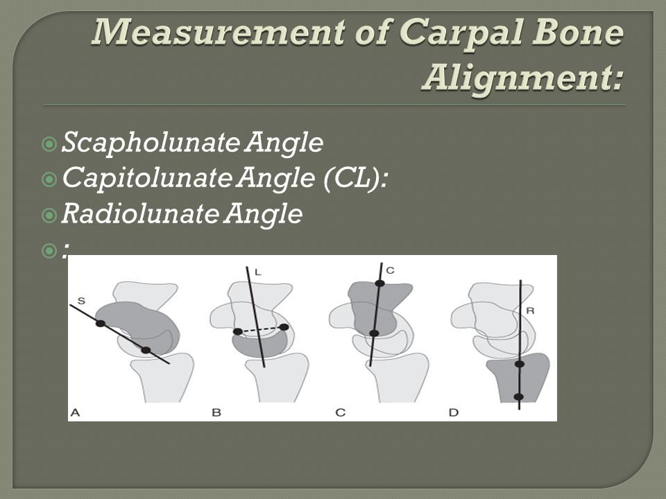 Measurement of Carpal Bone Alignment: