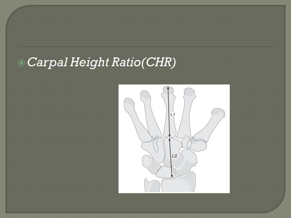 Carpal Height Ratio(CHR)