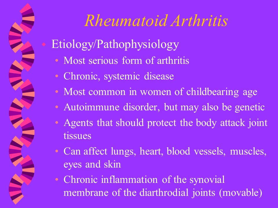 Rheumatoid Arthritis Etiology/Pathophysiology