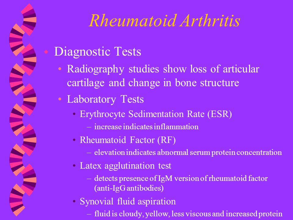 Rheumatoid Arthritis Diagnostic Tests