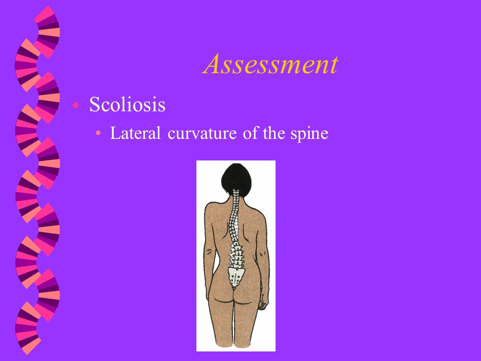 Assessment Scoliosis Lateral curvature of the spine