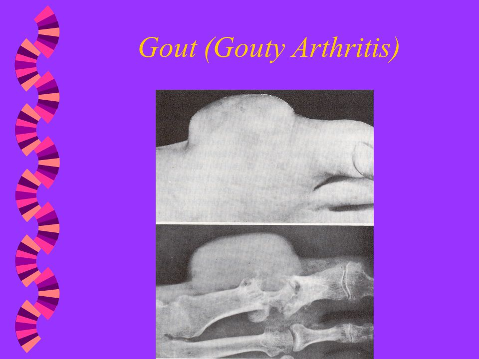 Rheumatoid Arthritis vs. Gout: How Do You Tell the Difference?