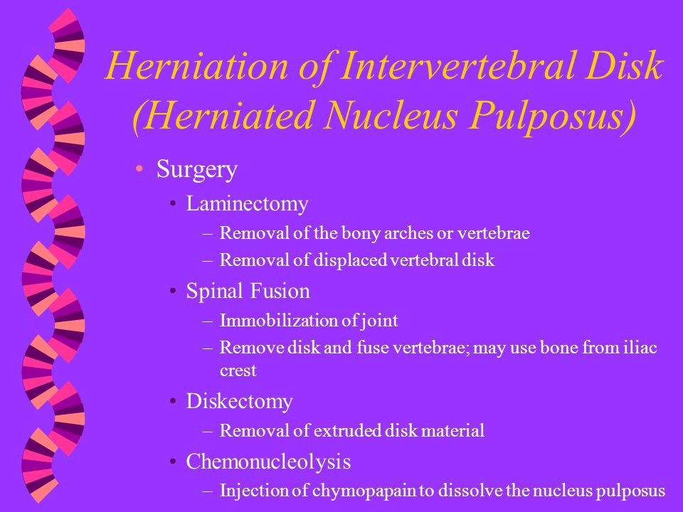 Herniation of Intervertebral Disk (Herniated Nucleus Pulposus)