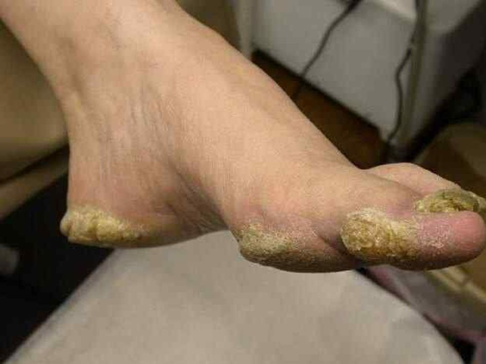 This patient has a pes cavus or high plantar arch deformity that has resulted in pressure points and callus formation over the heels, metatarsal heads, and along the medial aspect of the great toe.