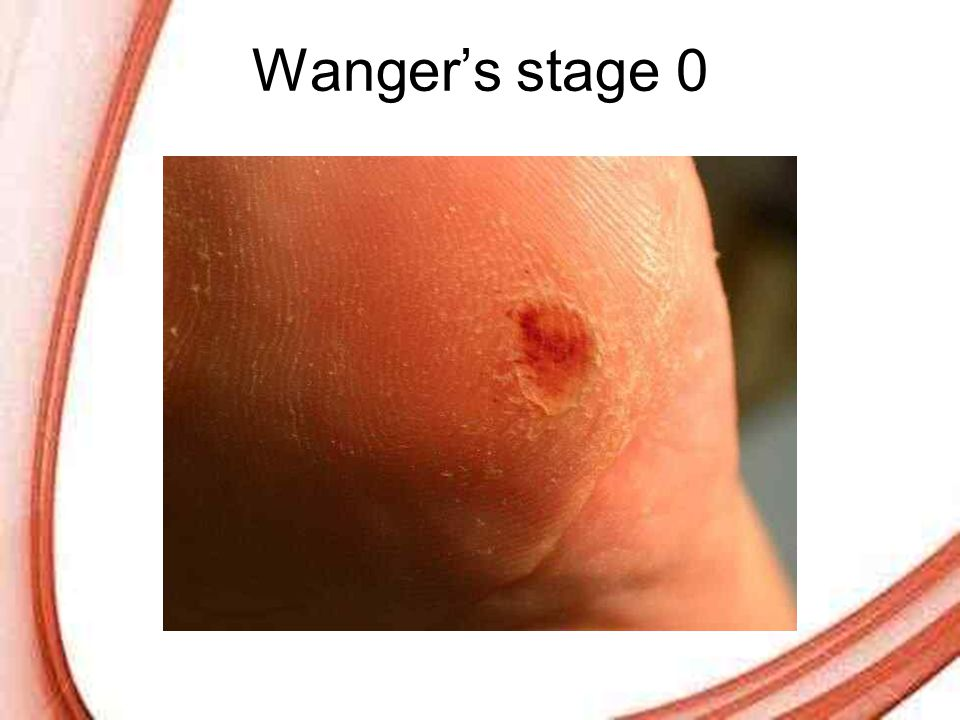 Wanger's stage 0