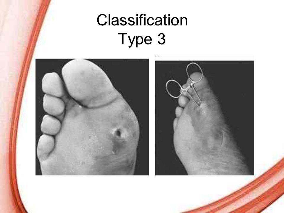 Classification Type 3